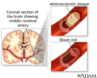 A stroke caused by a brain artery clogged by either a piece of atherosclerotic plaque that broke away or a blood clot.